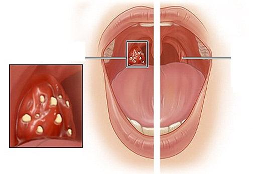 Krční mandle