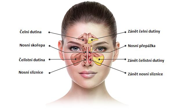Anatomie vedlejších dutin nosních