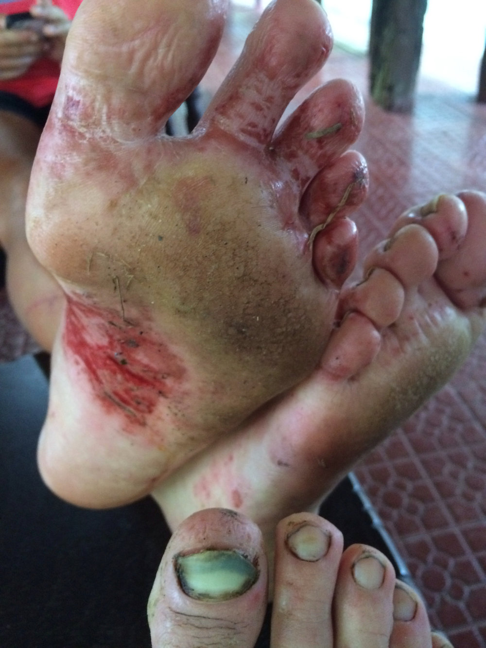 Post-race feet:  7+ days in the jungle