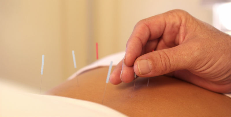 acupuncture-for-pain-management.jpg