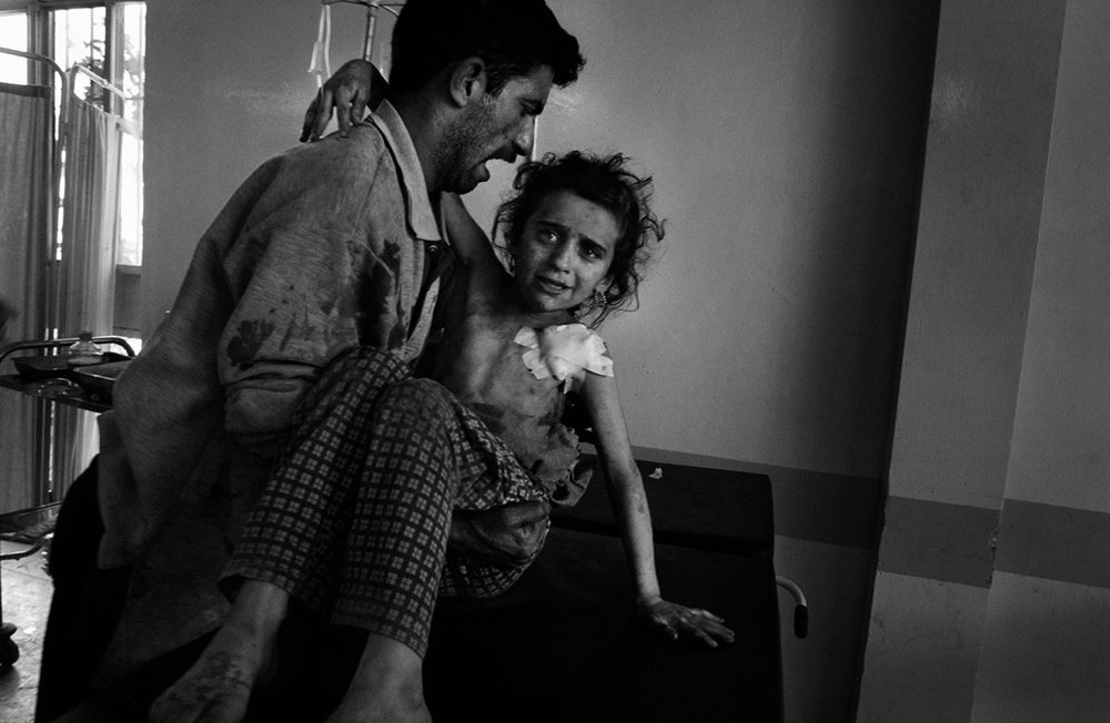 Iraq, Mosul, April 2003, Inside the city hospital, a girl wounded during a crossfire between US special forces and Iraqi army.