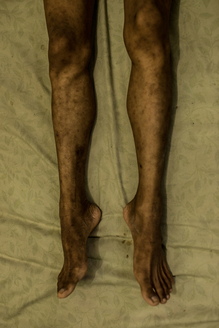 Ana's legs in full-blown AIDS. Ana is a young waria sex worker in Jakarta. Many waria are so poor that they often allow clients to have sex without using condoms to earn little more money. HIV is quickly spreading among this community and their clients, causing an estimated infection of about 50% of the waria sex workers in Indonesia.The Government has not yet recognised an emergency situation on this issue nor taken concrete actions to prevent this plague. Jakarta, Indonesia, 8th February 2016.