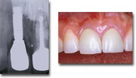 Upper central incisor replaced with an implant supported crown