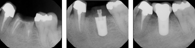 Non-Restorable lower molar removed and immediate implant placed. Final restoration is placed after 3 months healing.