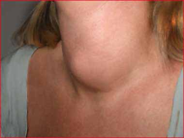 goiter treatment — hyperthyroidism & hypothyroidism, Skeleton