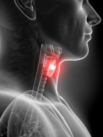 thyroidgoiter.jpg