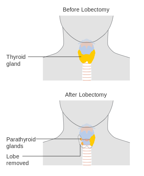 thyroidremovalsurgery.png