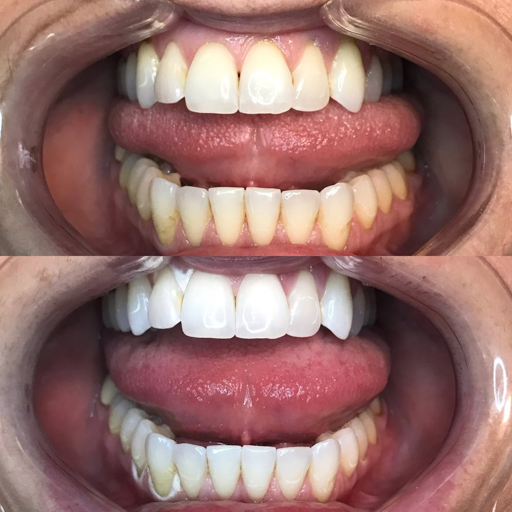 Before and after with no filter added! Whitening around the gums is temporary and goes away almost immediately!