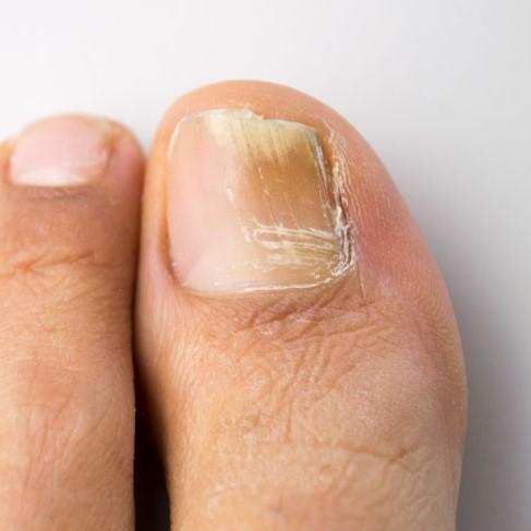 fungal toenails