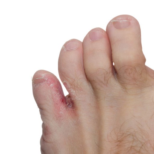 fungal infection between toes