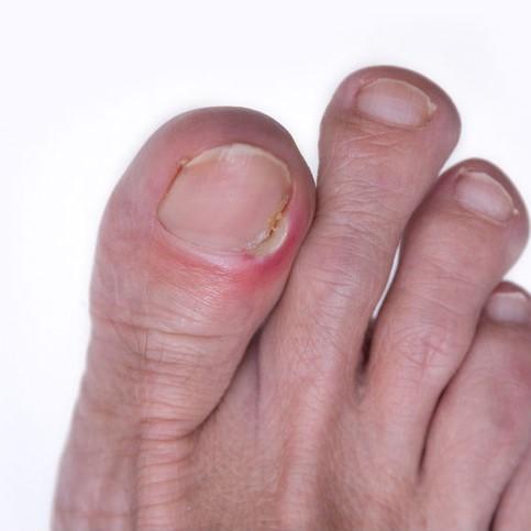 sore ingrown toenail