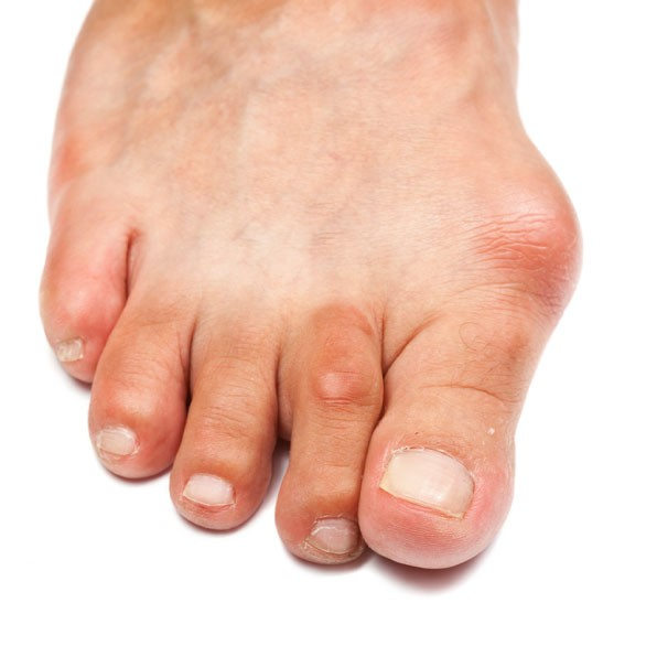 foot with a bunion