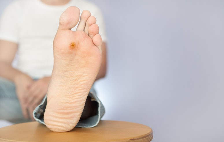 wart on man's foot
