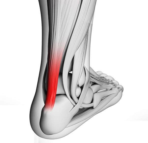 achilles tendon diagram