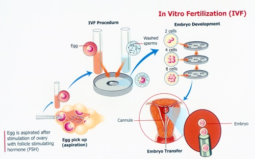 Figure 1 – How IVF is performed.