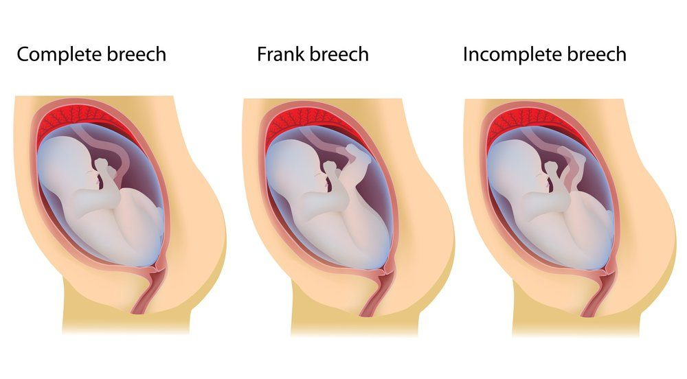 Figure 1 – Images of the breech presentations.