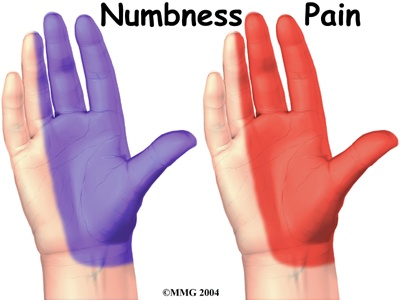 Figure 4 – Areas of numbness and pain.