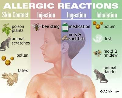 Figure 2 – Common allergy triggers.
