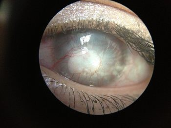 Corneal neovascularization and Corneal edema