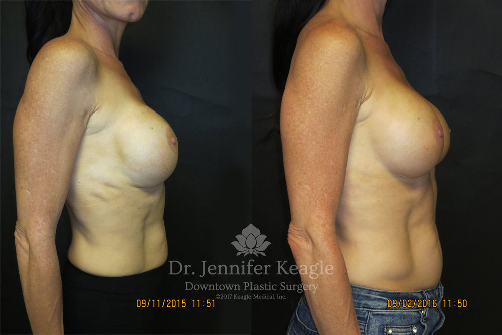 Dr-Jennifer-Keagle-Downtown-LA-Plastic-Surgery-IMG_8954