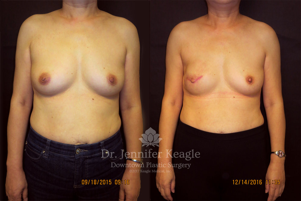 Breast reconstruction before and after mastectomy