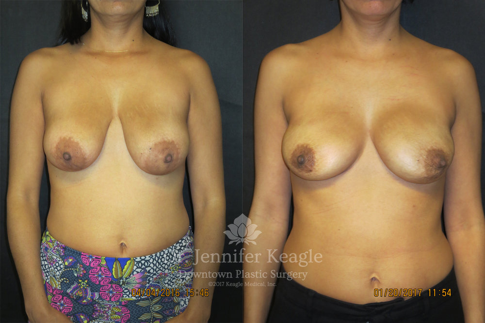 Reconstruction with implants before and after bilateral nipple sparing mastectomy