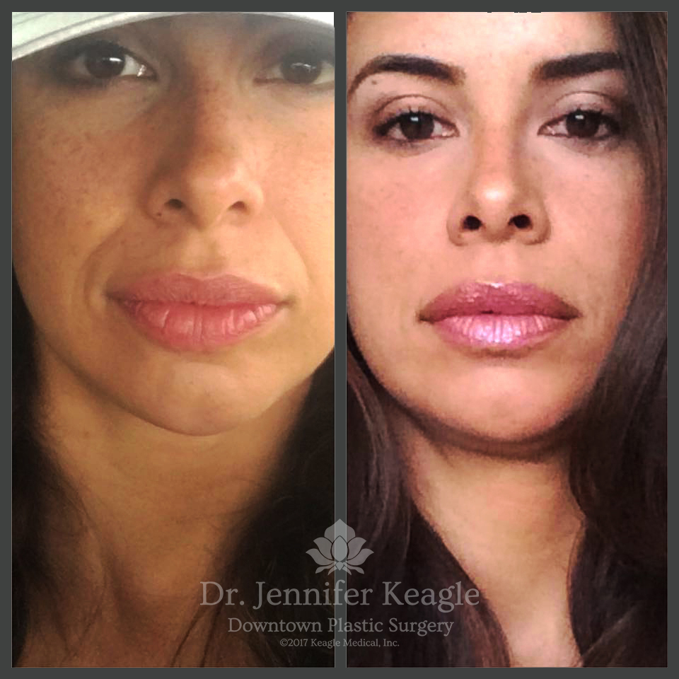 Non-surgical filler before & after