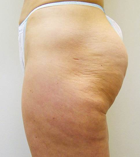 Cellulite Reduction & Body Contouring — The Bradford Clinic