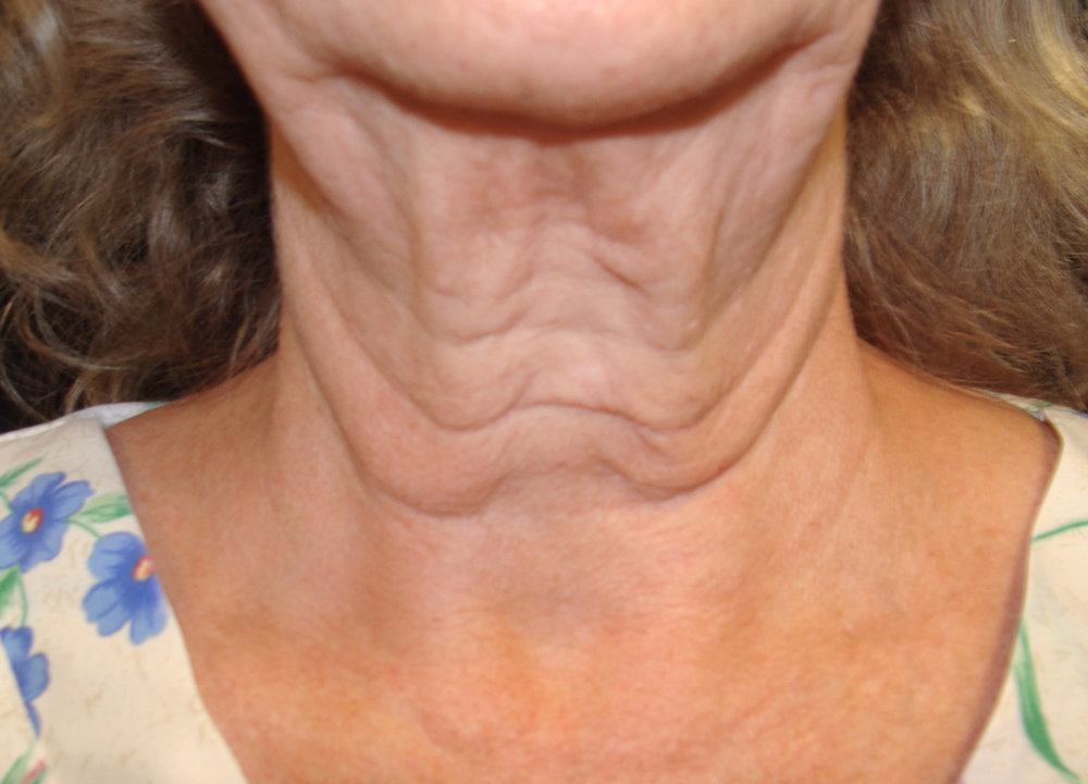 Exilis Neck (before).jpg