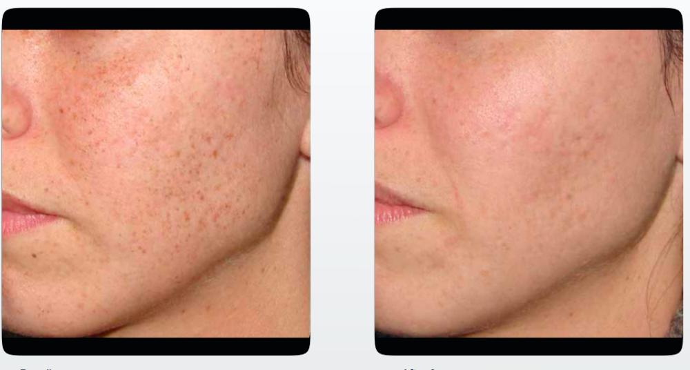 IPL Skin Rejuvenation B_A Photos.png