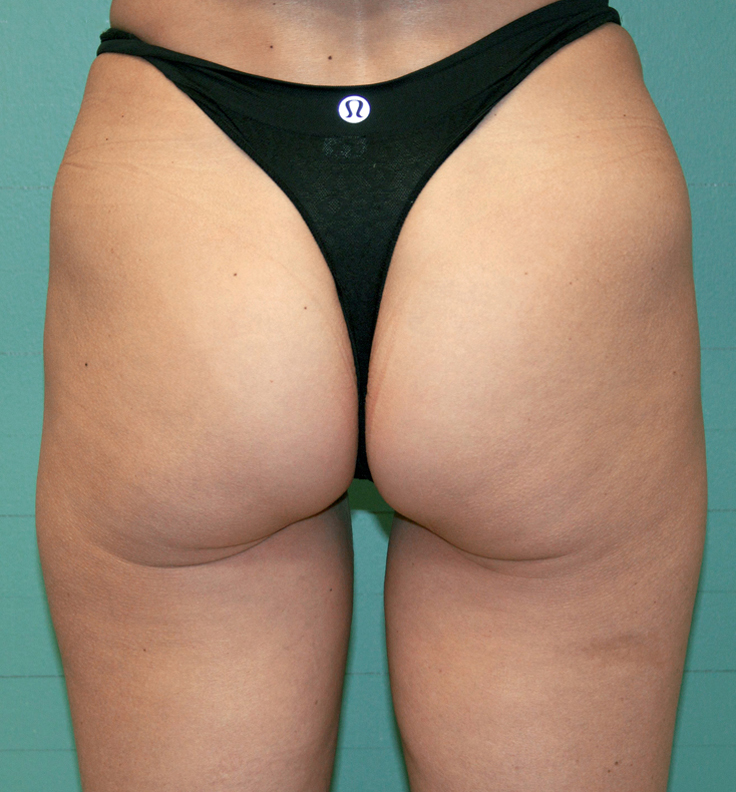 Exilis Buttocks (After).jpeg