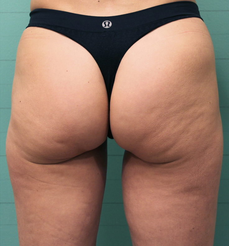 Exilis Buttocks (Before).jpeg