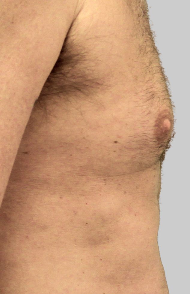 Exilis Male Chest (After).jpeg