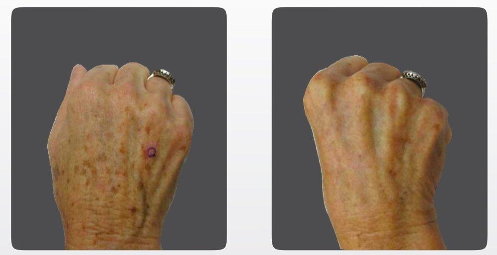 IPL Treatment (hands).jpeg