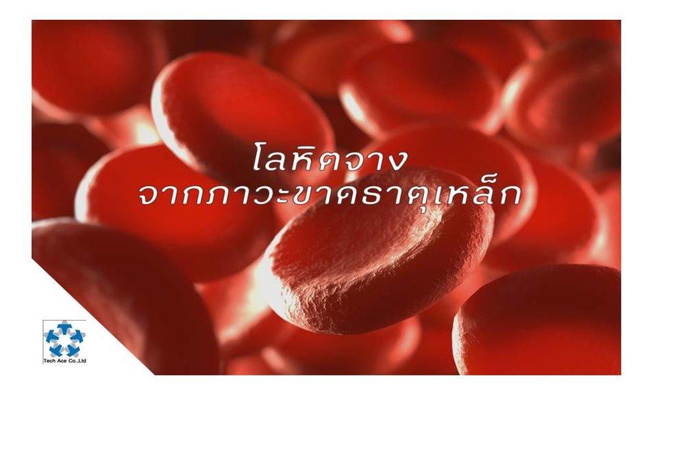 โลหิตจาง (เลือดจาง) หมายถึงภาวะที่ร่างกายมีปริมาณเม็ดเลือดแดงน้อยกว่าปกติ ทำให้มีอาการซีด อ่อนเพลีย เหนื่อยง่าย มีสาเหตุได้หลายประการ   สาเหตุที่พบได้บ่อยที่สุดในบ้านเราก็คือภาวะขาดธาตุเหล็ก ซึ่งเป็นองค์ประกอบสำคัญอันหนึ่งสำหรับการสร้างเม็ดเลือดแดงของร่างกาย  ภาวะนี้สามารถป้องกันและแก้ไขได้ง่ายๆ ด้วยการกินอาหารที่ถูกต้อง และการเสริมบำรุงด้วยยาที่เข้าธาตุเหล็ก (ยาบำรุงโลหิต)   1. เกิดจากการกินอาหารที่มีธาตุเหล็กไม่เพียงพอกับความต้องการของร่างกาย  เช่น กินเนื้อสัตว์ เครื่องในสัตว์ นม และไข่ น้อยเกินไป อาหารเหล่านี้มีธาตุเหล็กมาก ซึ่งลำไส้สามารถดูดซึมไปใช้ประโยชน์ได้มากกว่าธาตุเหล็กที่อยู่ในพืชผัก  ผู้ที่เบื่ออาหารจากการเจ็บป่วยเรื้อรังด้วยโรคอื่นๆ (เช่น วัณโรคปอด มะเร็ง เอดส์) หรือผู้สูงอายุที่กินอาหารได้น้อยหรือไม่ครบส่วน (เช่น ไม่มีฟันเคี้ยวเนื้อสัตว์) ก็อาจได้รับธาตุเหล็กน้อยเกินไป  ผู้ที่กินอาหารมังสวิรัติ ชีวจิต หรือแมกโครไบโอติก อย่างเคร่งครัดและไม่ถูกหลักโภชนาการ คือกินแต่พืชผักเป็นหลัก ก็อาจขาดธาตุเหล็กได้ เนื่องจากถึงแม้ในพืชผักจะมีธาตุเหล็กอยู่ แต่ธาตุเหล็กในพืชผักถูกลำไส้ดูดซึมเข้าร่างกายได้น้อย โดยเฉพาะอย่างยิ่งถ้ากินพร้อมข้าวซึ่งมีสารไฟเทต (phytate) ที่ขัดขวางการดูดซึมของธาตุเหล็ก  นอกจากนี้ เด็กในวัย 2 ขวบแรก และเด็กวัยรุ่นในช่วงกำลังเจริญเติบโต รวมทั้งหญิงตั้งครรภ์ (ซึ่งมีความต้องการธาตุเหล็กเพิ่มขึ้นกว่าคนปกติ เพื่อนำไปใช้ในการเจริญเติบโตของทารกในครรภ์) ถ้าไม่ได้กินธาตุเหล็กให้เพียงพอ ก็มักจะเกิดภาวะโลหิตจางได้   2. เกิดจากการเสียธาตุเหล็กออกไปกับเลือด  เช่น มีประจำเดือนออกมาก (พบได้บ่อยในหญิงวัยรุ่นและวัยเจริญพันธุ์) ตกเลือดเนื่องจากแท้งบุตรหรือคลอดบุตร เลือดออกจากกระเพาะอาหาร (ถ่ายอุจจาระเป็นสีดำ) จากการใช้ยาแก้ปวดข้อและสาเหตุอื่นๆ เลือดออกเรื้อรังในผู้ที่เป็นริดสีดวงทวาร (ถ่ายเป็นเลือดสด) เป็นโรคพยาธิปากขอ เป็นต้น  ในระยะที่มีภาวะโลหิตจางเล็กน้อย มักไม่มีอาการแสดงชัดเจน หรือผู้ป่วยที่มีโลหิตจางแบบค่อยเป็นค่อยไปทีละน้อย ผู้ป่วยก็อาจไม่รู้สึกว่าตัวเองมีอาการผิดปกติใดๆ ก็ได้  ในรายที่มีภาวะโลหิตจางมาก หรือเกิดขึ้นฉับพลัน (เช่น ตกเลือด) ก็มักจะมีอาการอ่อนเพลีย ทำอะไรรู้สึกเหนื่อยง่าย หน้ามืด มึนงง เวียนศีรษะ เบื่ออาหาร ถ้าเป็นมากอาจมีอาการใจหวิว ใจสั่นร