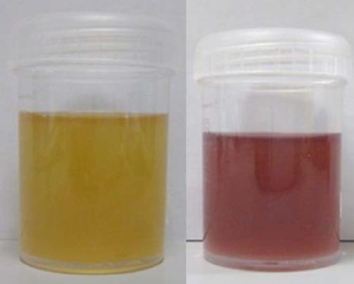 Purple urine in Porphyria (right)