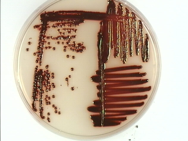 Serratia marcescens