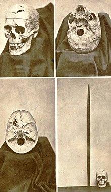 Skull and Rod
