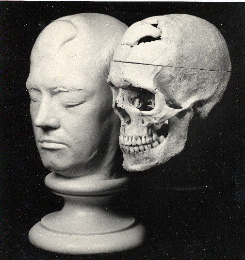 Life mask and skull. Warren Museum.