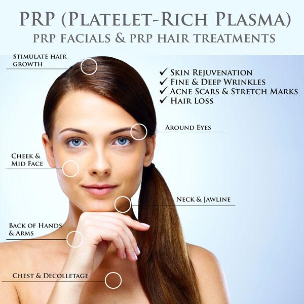PRP areas.jpg