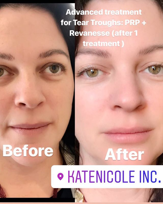 #PRP combined with #REVANESSE #dermalfiller to correct #teartroughs. We are excited to now be offering #PRP ! ! The #PRP (Platelet Rich Plasma) #Vampirefacials and especially for tear trough and #hairrestoration are one of the best #Anti-Aging treatments. Rich in platelets &growth factors they stimulate #stemcells to the area. Stem cells in turn stimulate #collagen synthesis & restore natural volume! It truly is an amazing #treatment #yorkvilleclinic #toronto #beauty #antiagingmedicine #katenicolewellnesscentre #kingwest