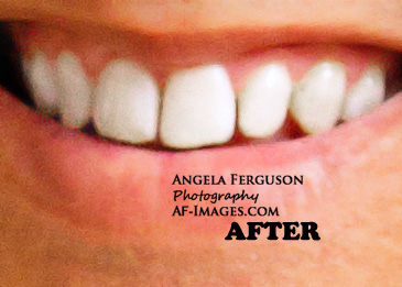 Sample of teeth whitening. (Copyright Angela Ferguson Photography 2015)