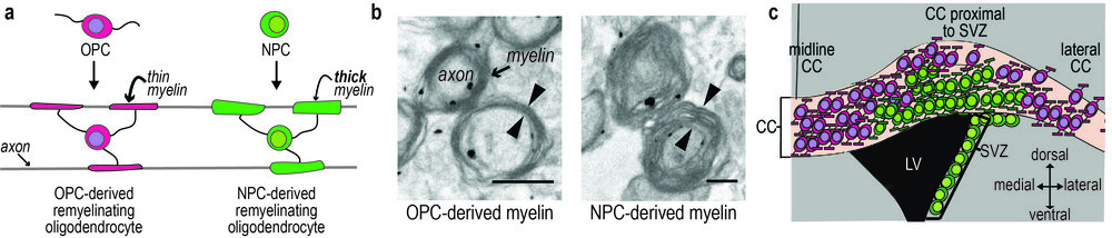 Following demyelination, neural progenitor cells (NPCs) produce myelin of normal thickness, whereas oligodendrocyte progenitor cells (OPCs) produce thin myelin. b) Immunogold electron microscopy reveals that progenitor identity determines the thickness of the myelin that they regenerate following demyelination (Xing et al, 2014; J Neurosci). c) Schematic of coronal section of adult mouse brain: NPC-derived oligodendrocytes remyelinate the region of the CC proximal to the SVZ, whereas OPC-derived oligodendrocytes remyelinate the medial and lateral regions of the CC. CC, corpus callosum; LV, lateral ventricle; SVZ, subventricular zone. Scalebar = 1µm.