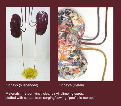 Kidney pics for blog post