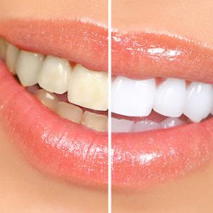 Teeth Whitening Powder Springs, GA.