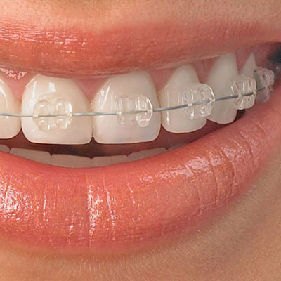 Adult Braces Six Month Smiles