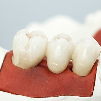 Dental Crowns & Bridges