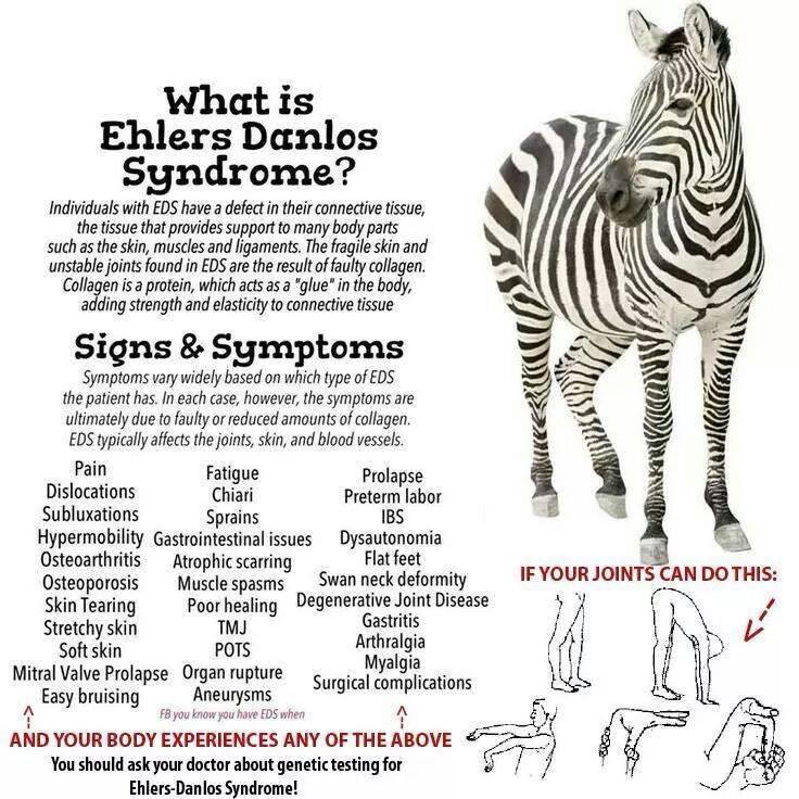 pots ehler s danlos syndrome the tale of a zebra eds and pots