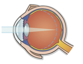 Myopic Eye.png