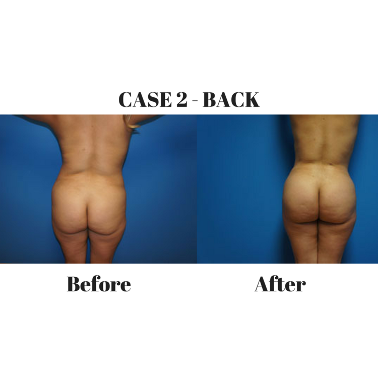 Brazilian Butt Lift Case 2 Back